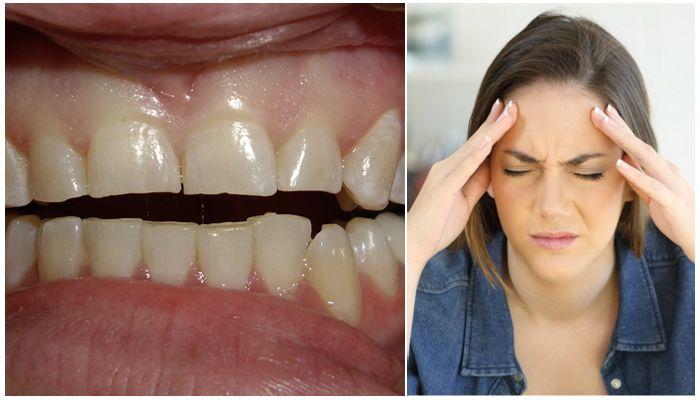 Фото сильно стертых зубов, головной боли