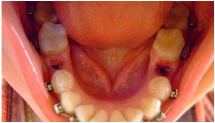 Ставят ли брекеты, если не хватает зубов