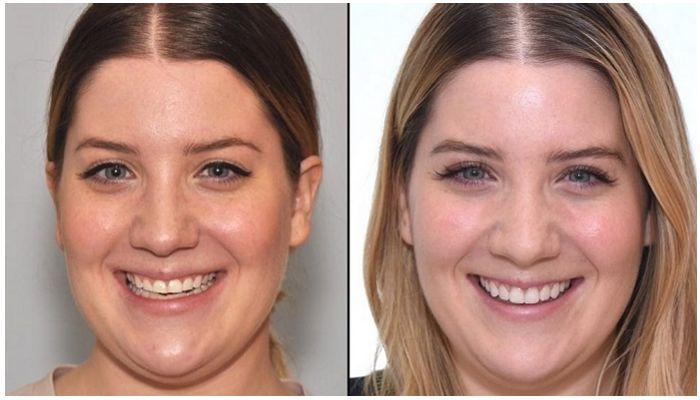 Виниры на зубы: до и после