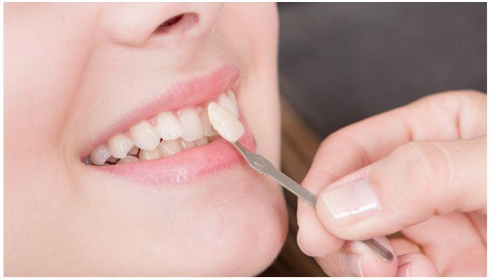Ультраниры на зубы