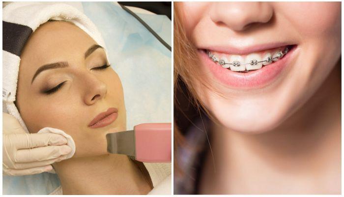 Можно ли делать чистку лица ультразвуком с брекетами на зубах