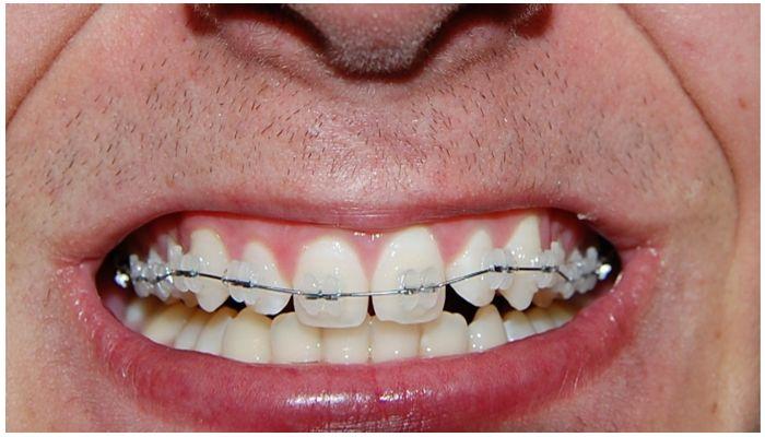 Брекеты только на верхних зубах