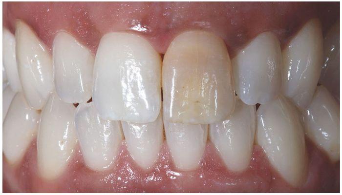 Обточенные зубы
