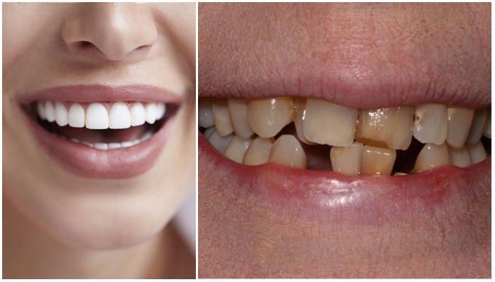 Фото установленных виниров и испорченных зубов