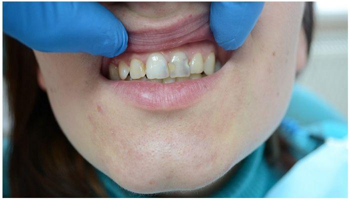 Некрасивые запломбированные зубы