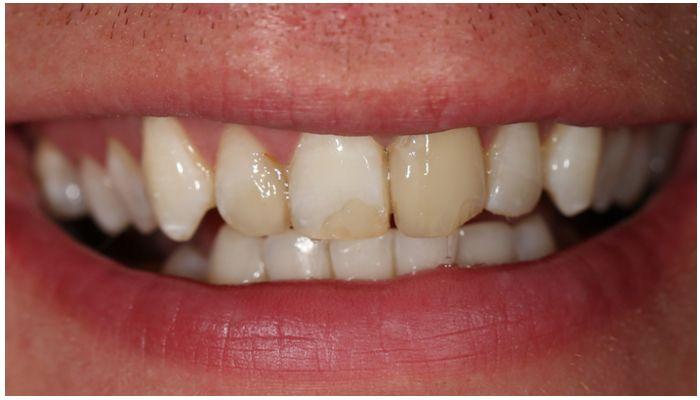 Cтавят ли виниры на пломбированные зубы