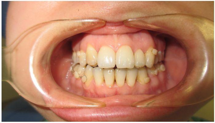 Что делать, если передние зубы большие