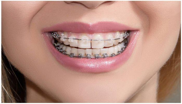 Брекеты на нижних и верхних зубах