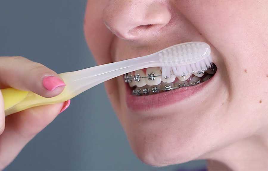 Как чистить зубы с брекетами — видео