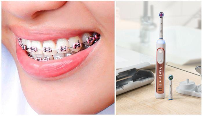 Можно ли чистить зубы электрической щеткой с брекетами