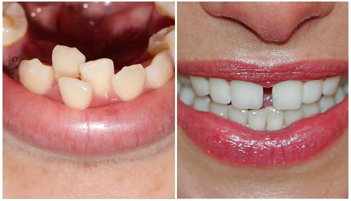Скученность зубов, диастема