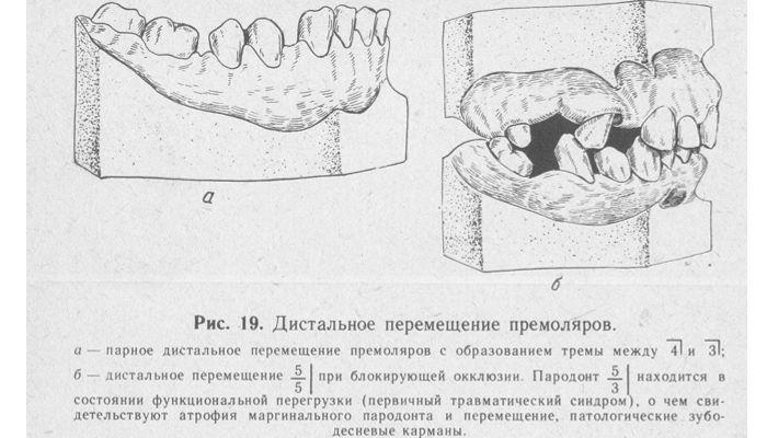 Дистальное смещение зубов