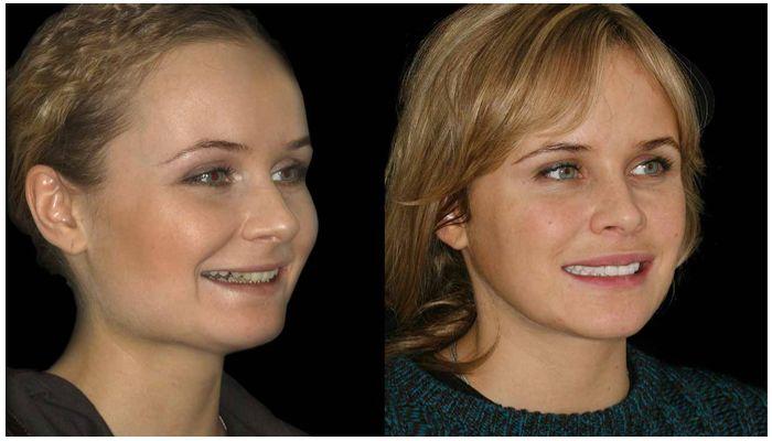 До и после коррекции патологических прикусов