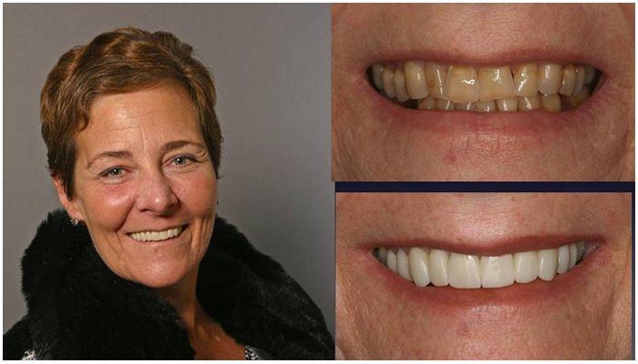 Фото до и после установки виниров