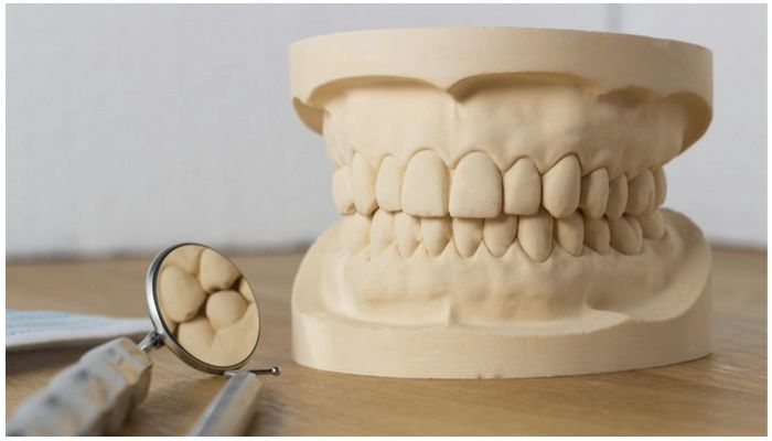 Гипсовая модель челюсти пациента