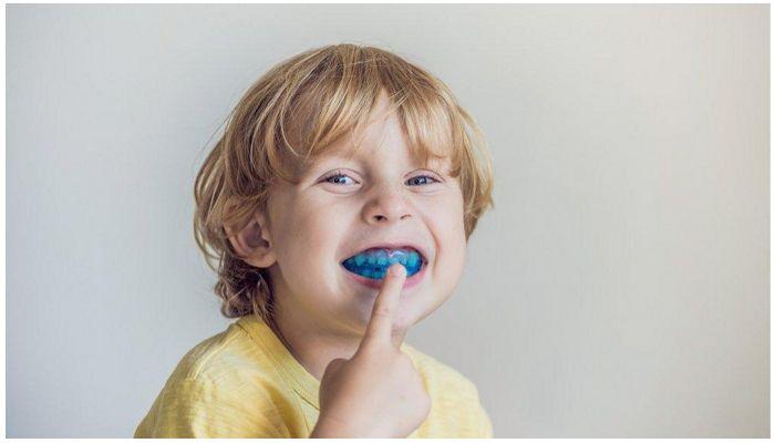 Стоматологическая капа для выравнивания зубов у детей