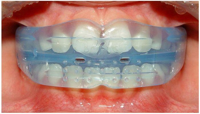Фото кап на зубах