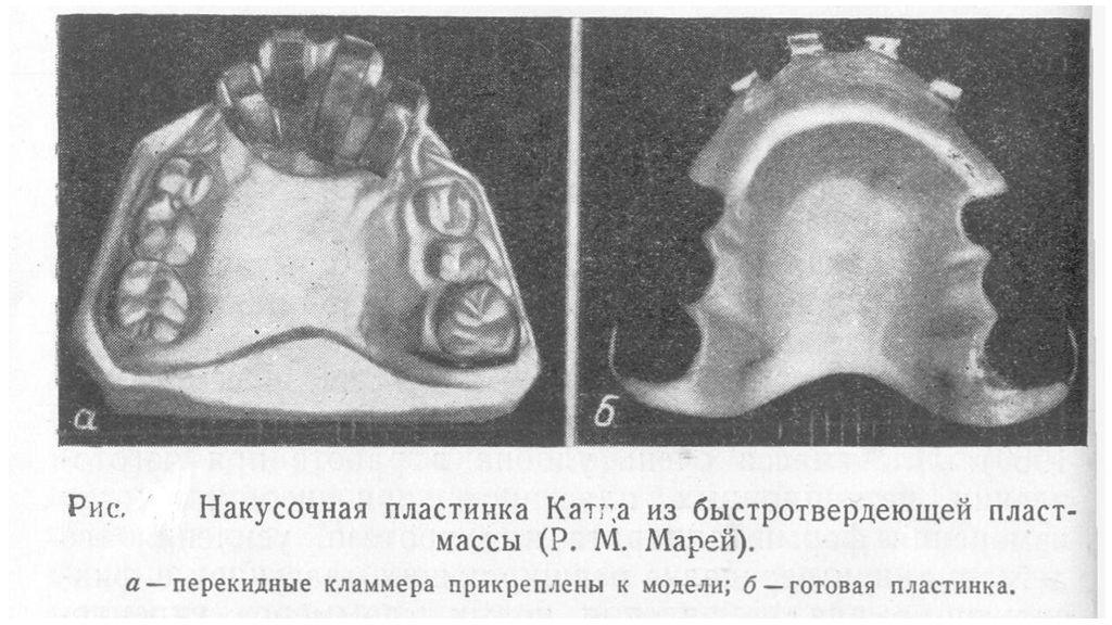 Аппарат Катца