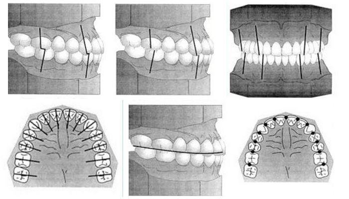 Классификации аномалий положения зубов в ортодонтии