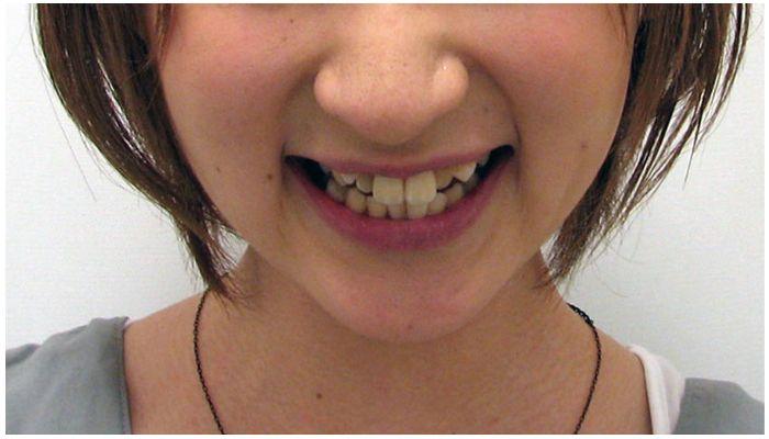 Неровные (кривые) зубы у взрослых — что делать