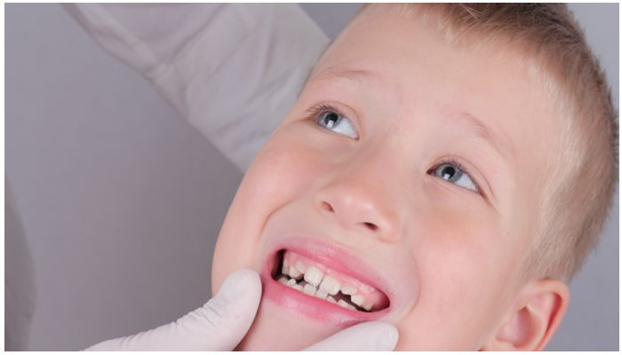 Кривые зубы в у ребенка