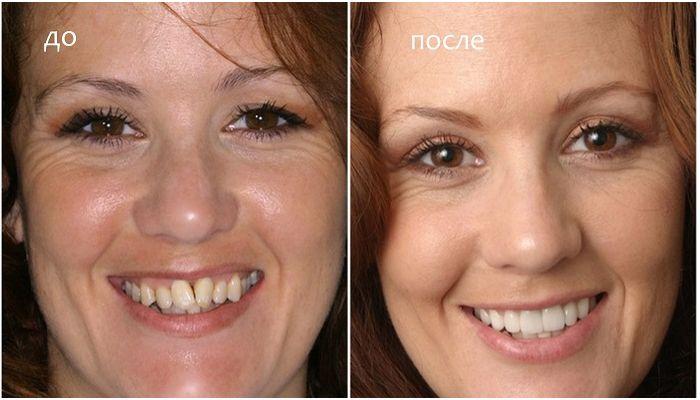 Фото кривых зубов до и после с винирами