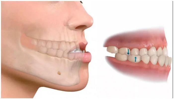 Мезиальное положение зубов