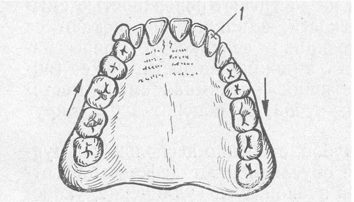 Мезиальное смещение зубов