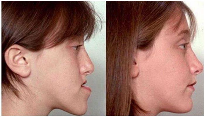 Фото мезиального типа челюсти