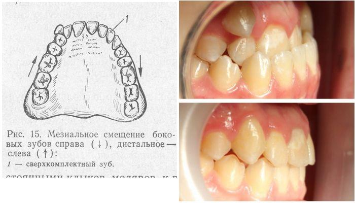 Дистальная и мезиальная дистопия зуба