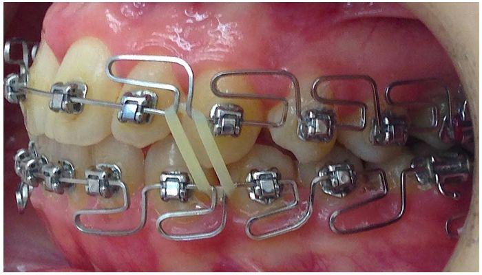 Многопетлевая дуга на зубах