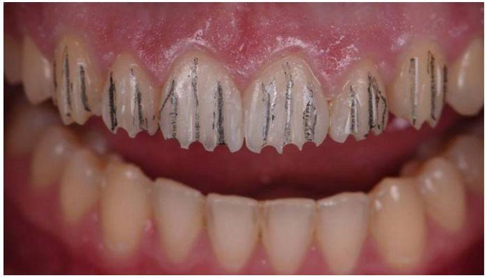 Фото обточенных зубов перед установкой виниров