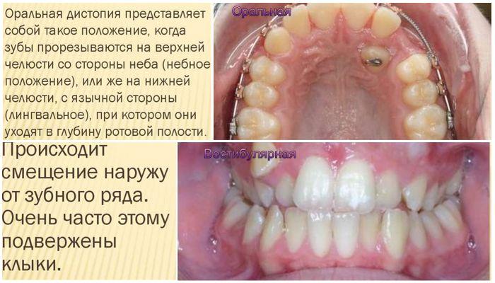 Вестибулярная и оральная дистопия зуба