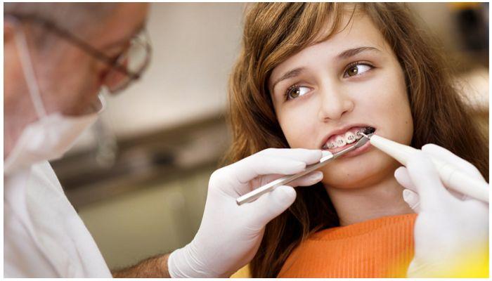 Стоматолог-ортодонт ставит брекеты