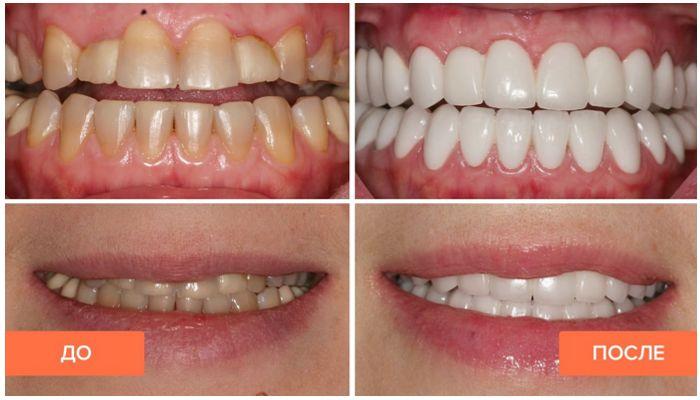 Фото до и после лечения винирами
