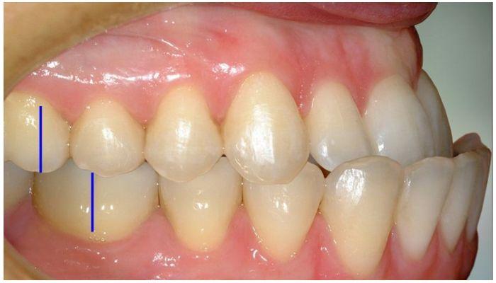 Зубы при мезиальном прикусе