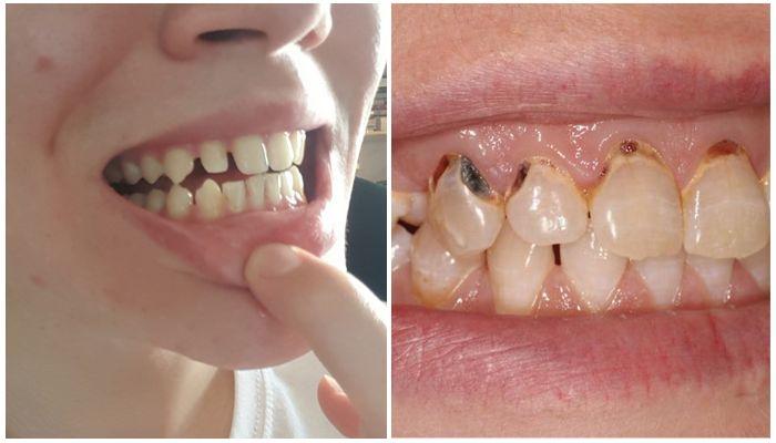 Последствия для зубов после брекетов