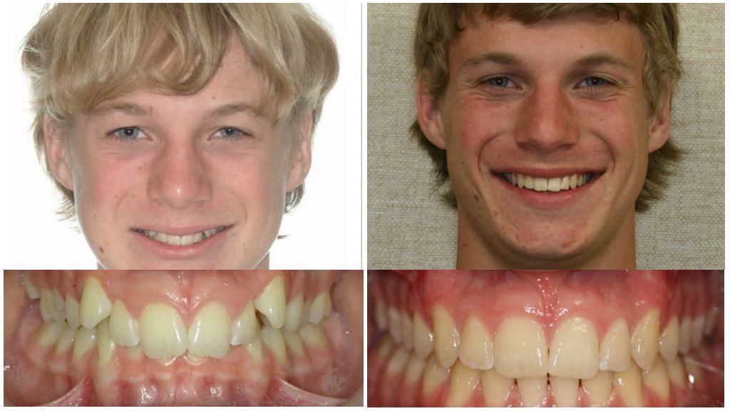 До и после брекетов