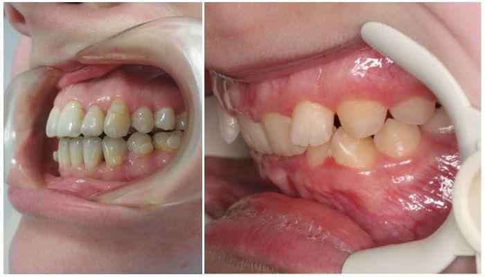 Зубы выпирают вперед — как исправить