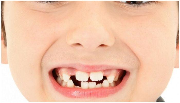 Редкие молочные зубы