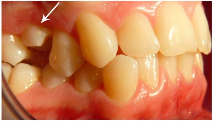 Частичная ретенция зуба