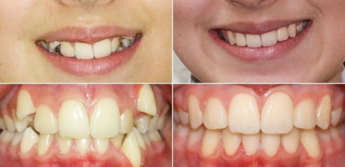 Фото сапфировых брекетов: результат до и после