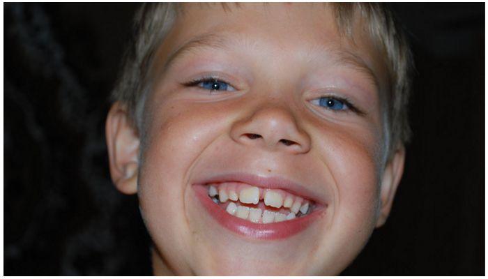 Что делать, если у ребенка щербинка между передними зубами