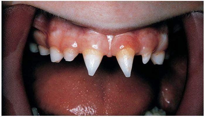 Шипообразные зубы