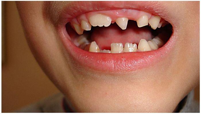 Как исправить шиповидные зубы