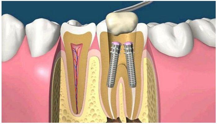Укрепление зуба штифтом