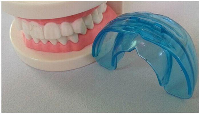 Цены на стоматологические капы для зубов