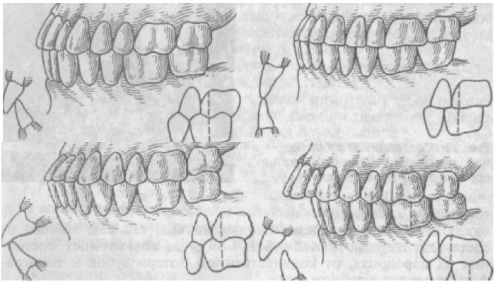 Фото степеней окклюзии