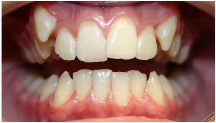 Почему смещаются зубы у взрослых