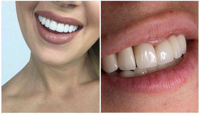 Можно ли ставить виниры на депульпированные зубы